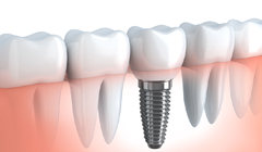 Dental Implants Winchester - Tooth Implant Dentist - Solution dental clinic
