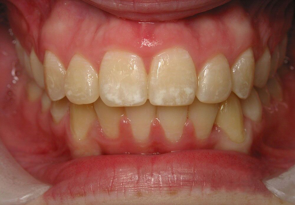 Winchester Six Month Smiles Braces