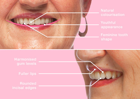 Winchester Dentures - Solutions Dental clinic