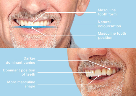 Dentures in Winchester - Solutions Dental Clinic