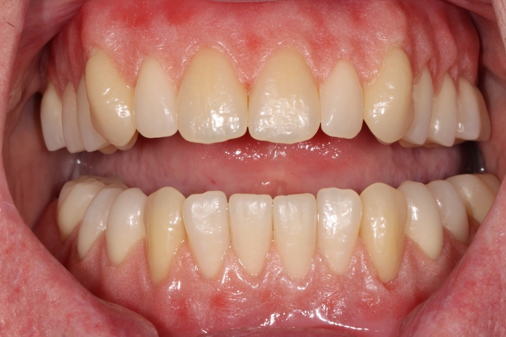 Dentures Winchester - Partial Dentures for Missing Teeth