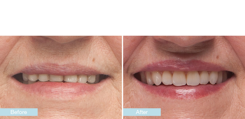 Dentures Treatment Winchester - Solutions Dental Clinic