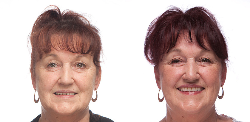 Dentures Treatment Photo - Solutions Dental Clinic Winchester