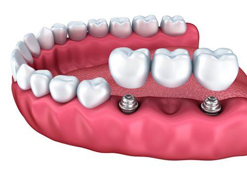 Implant Dentist Winchester