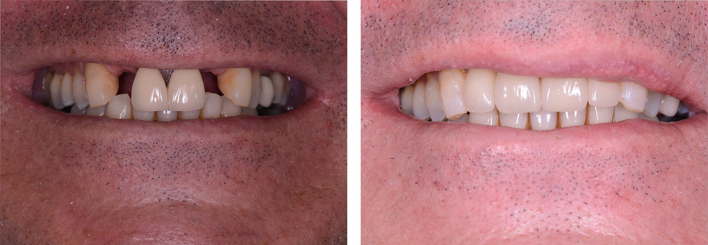 Dental Implants Winchester - Solutions dental clinic