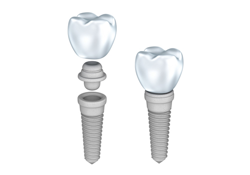 Dental Implants Winchester