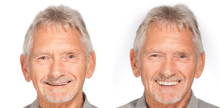 Michael Age 69 with Changing Faces® Dentures