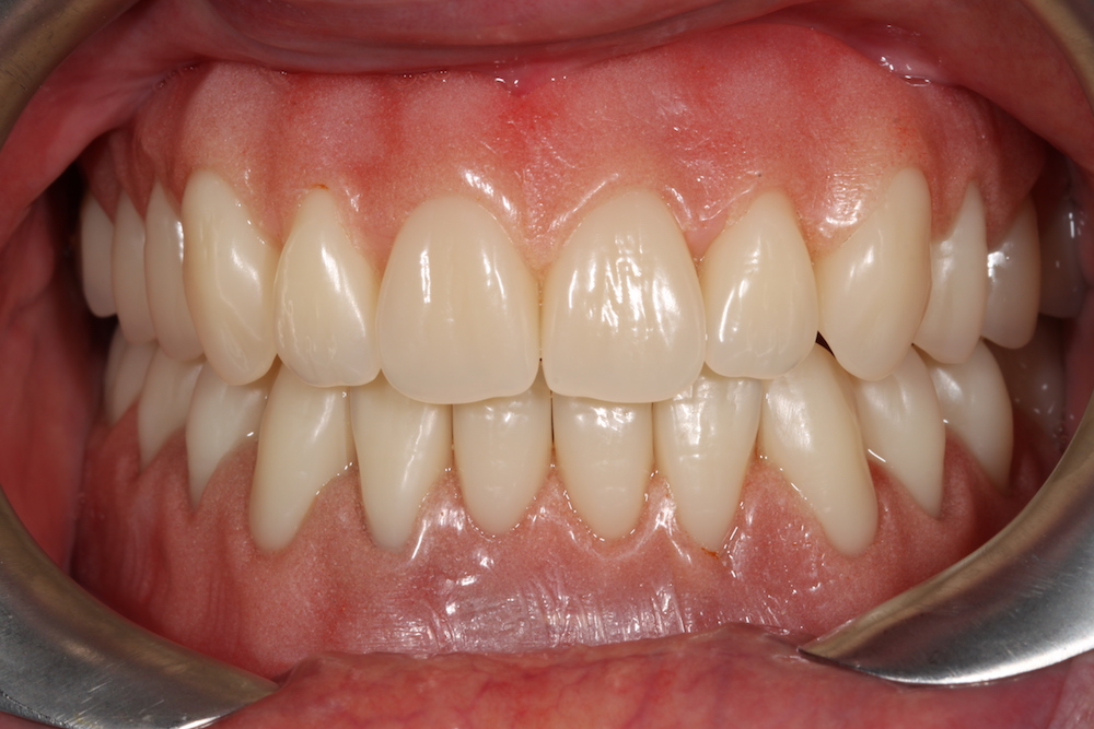 Same Day Treatment Photo - Solutions dental clinic