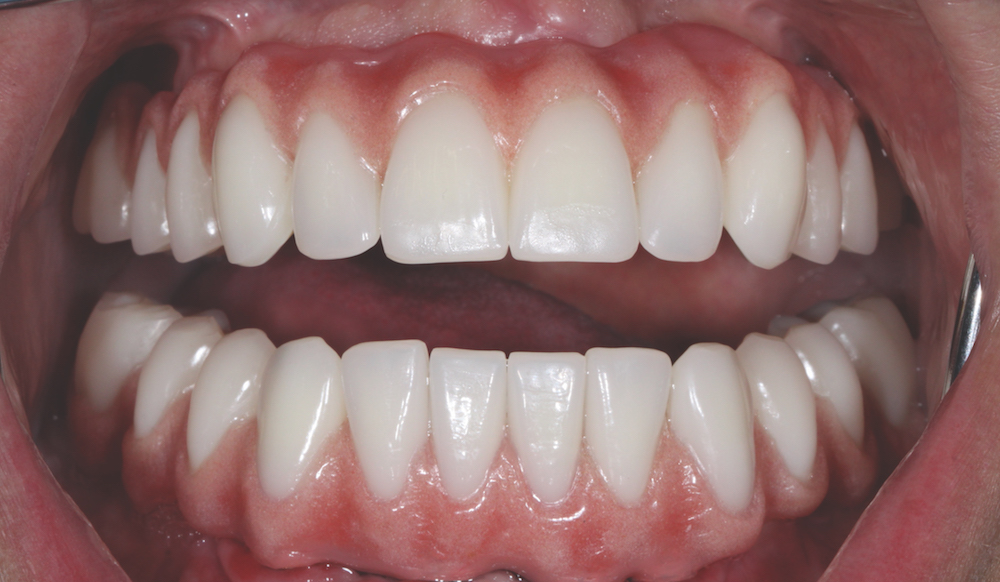 Happy patient after treatment - Solutions Dental Clinic Winchester