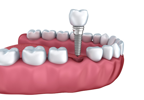 Winchester Dental Implants