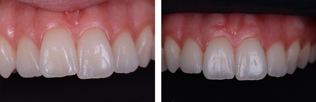 Teeth Straightening Winchester