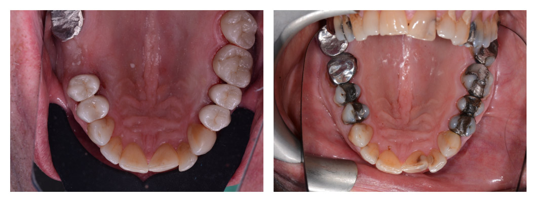 Before and After Dental Fillings Treatment in Winchester
